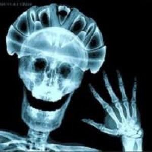 День Рентгенолога